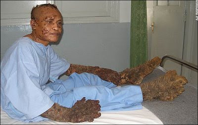 Dede, The Tree Man after the surgery