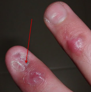 Nail Bed Injury Sutured For A Living Finger Nail Bed Injuries