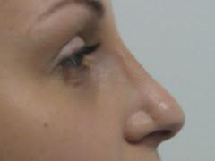 Rinoplastia - Video - Plástica de Nariz