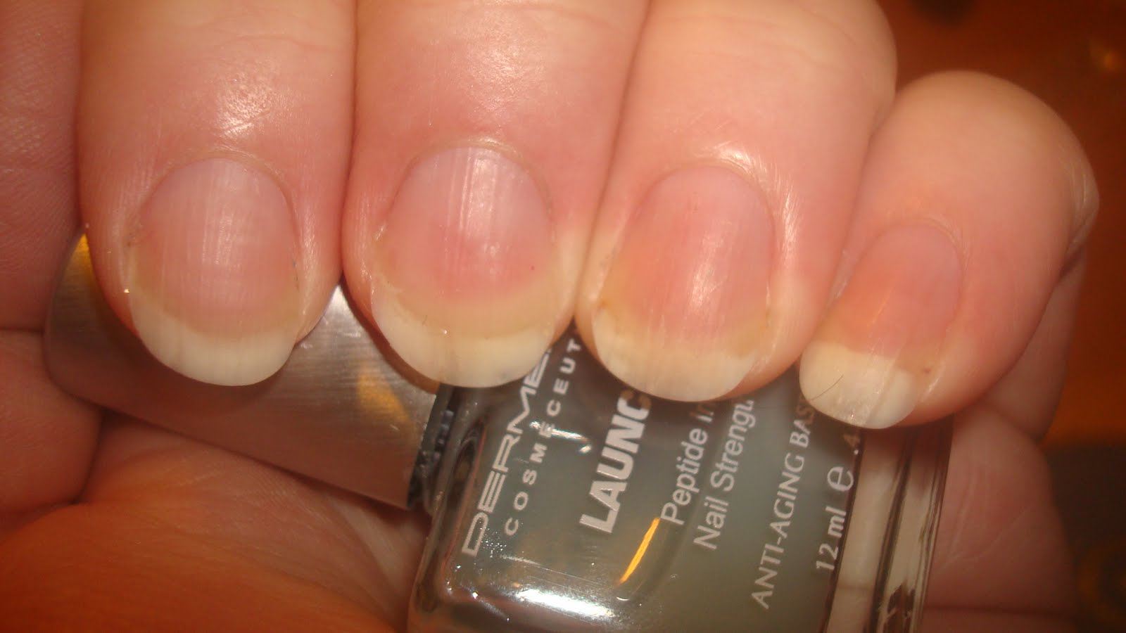 A Polish Problem: Nail Recovery Update