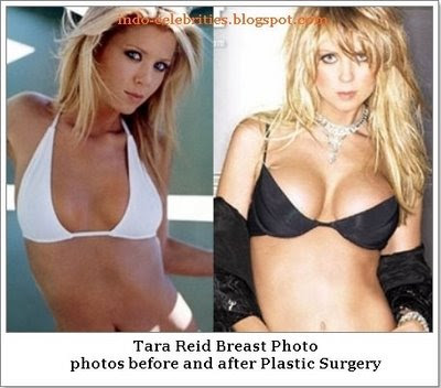 Tara Reid Breast. Watch premium Sex Tape