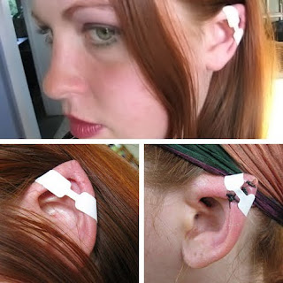 Elf Ear Syndrome