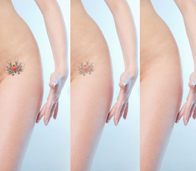 woman tattoo removal before-after