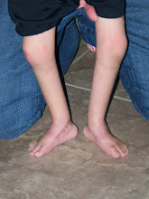 Bryson Standing First Day Out of Casts! April 20, 2009