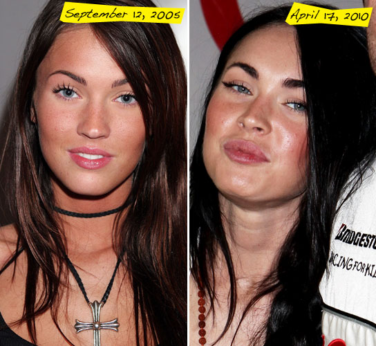 megan fox lip job. megan fox lip job. megan fox