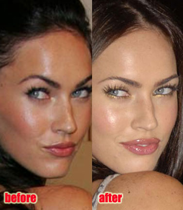 megan fox plastic surgery pics