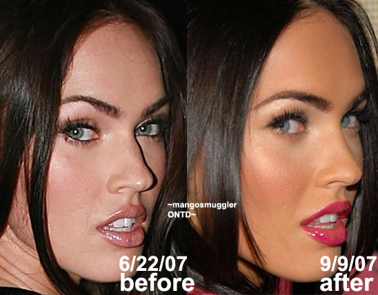 megan fox before and after nose job. megan fox nose job before and after
