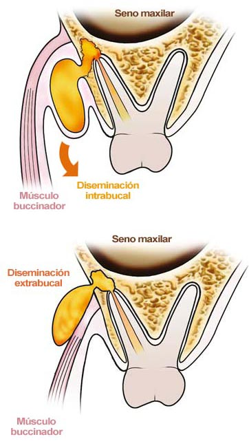Diseminación de Infecciones Odontogénicas: Infecciones Odontogénicas