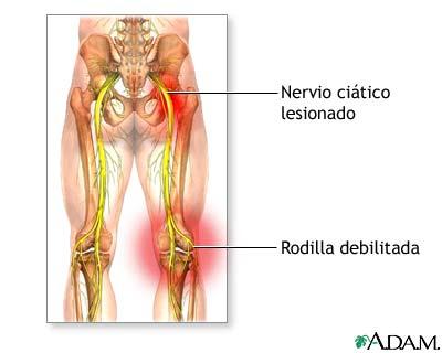 Clic gimnasio dolor de ci tica qu hacer - Dolor en la parte interior de la rodilla ...