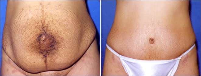 How much does it cost to get stretch marks removed