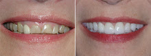 Crown Lengthening / Gum Recontouring