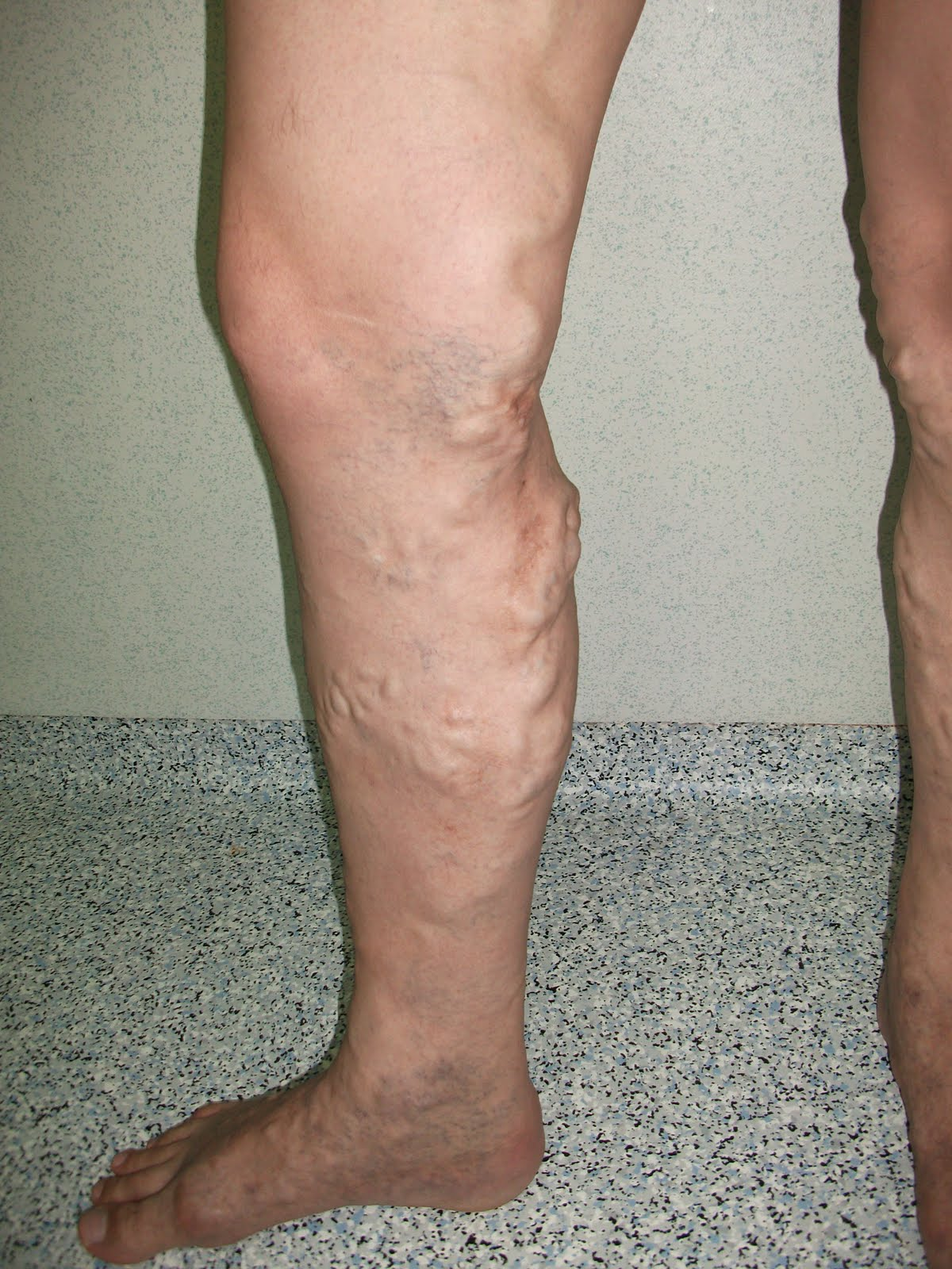 Depistarea ?i reducerea durerii de spate in mijlocul ciclului