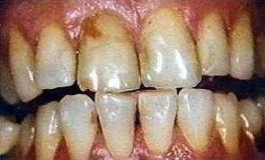 Poor oral hygiene. Unbrushed teeth.