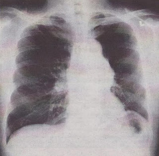 COPD chest x-ray.