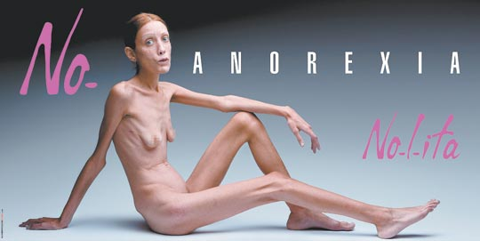 external image no-anorexia%255B1%255D.jpg