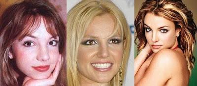 Бритни Спирс, исправленные носы знаменитостей
