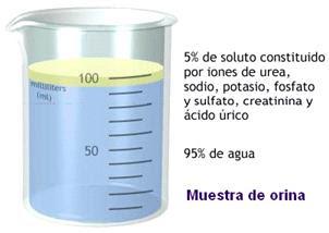 la cerveza sin alcohol es buena para el acido urico acido urico alto en la orina en ninos acido urico que es bueno para eliminar