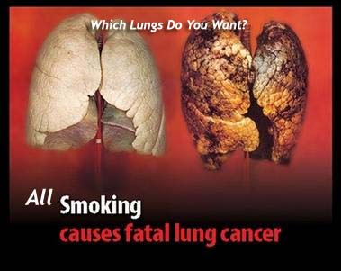 Which Lungs Do You Want?