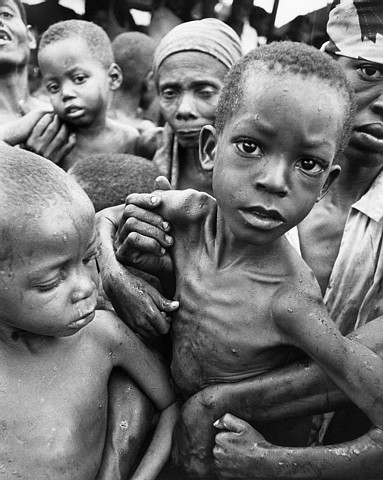 Current estimates are that it would take 50 billion dollars a year to    Hungry People In Africa