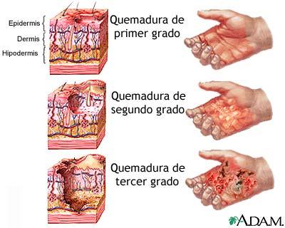 Que procedimientos para la persona de las arrugas