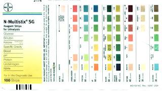 Test Chem strip interpretation urine