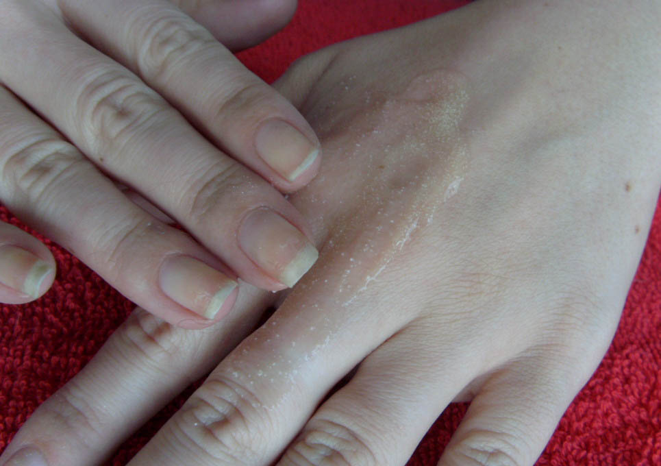 Gribok der Nägel schnell die Präparate zu heilen