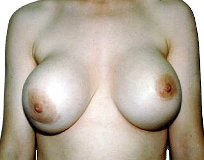 Breast augmentation and suicide