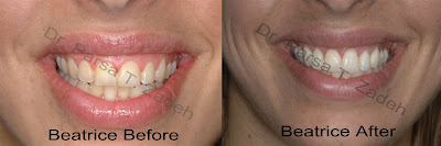 cost of gummy smile surgery, before and after photos