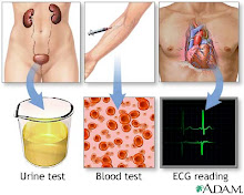 Hypertension tests