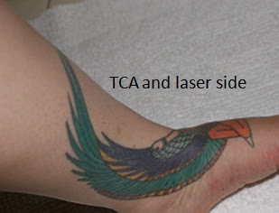 Tca Tattoo Removal