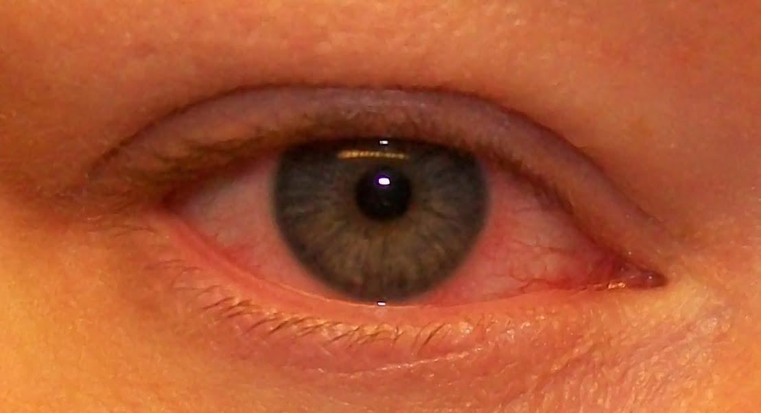 bindhinneinflammation i ögat