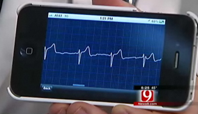 iphone heart beat monitor app