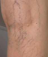 varices jambes