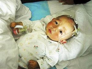Mais de 50.000 casos de envenenamento