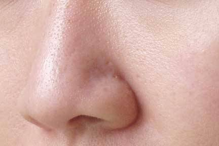 ... pores on skin permanently how to get rid of large open pores on skin