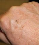 Efecto de la Contaminación sobre la Piel, haciendola más vieja.