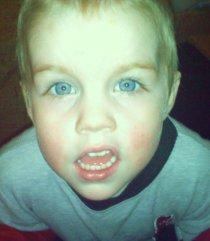 My Garrett