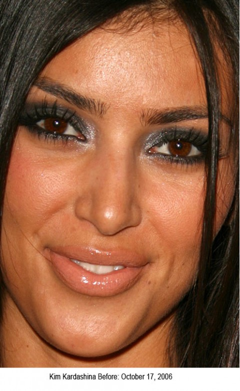 kim kardashian plastic surgery before. efore plastic surgery.