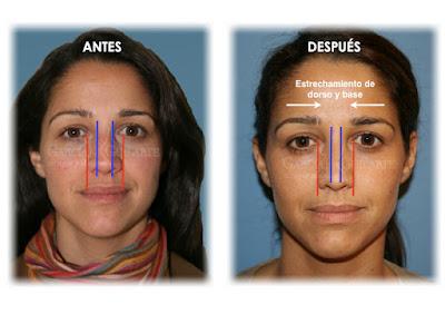rinoplastia_operacion-nariz_cirujano_plastico