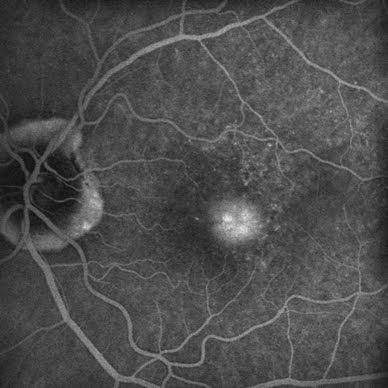 Angiography artery damage fundus fluorescein angiography guideline