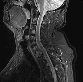 CT/MRI Procedures I: cervical