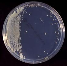 bakteri susu formula