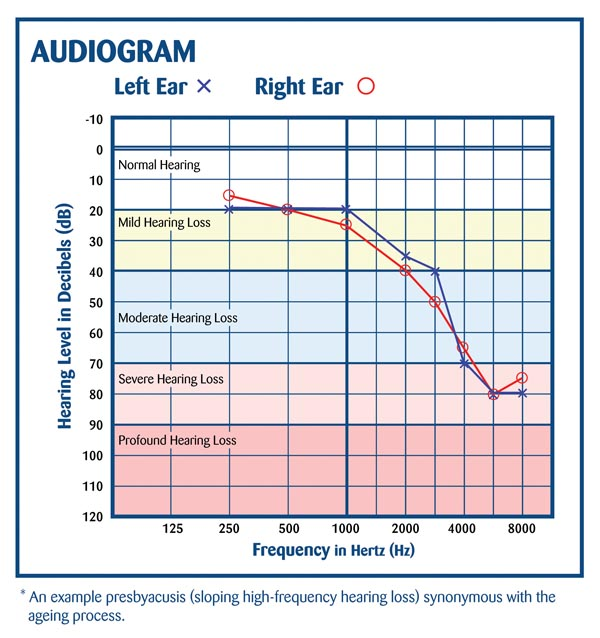 Image Result For Home Audiogram