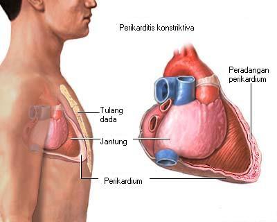 Cara Mengatasi Jantung Terendam Cairan