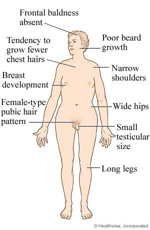 xxy kromosom