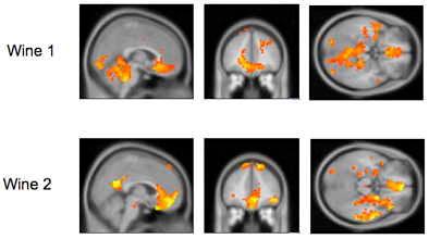 Hjärnaktivitet vid lustupplevelse