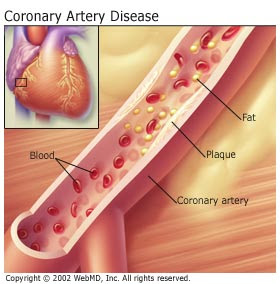 an in depth look at the cause symptoms and treatment of coronary heart disease Cardiac disorders such as coronary heart disease  high blood pressure usually does not cause symptoms  look up cardiology in wiktionary,.