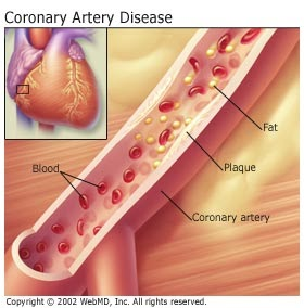 the characteristics of artherosclerosis coronary artery disease and endothelium This leads to characteristic vascular symptoms such as cold hands but also a risk   primary vascular dysregulation atherosclerosis flammer syndrome   endothelial dysfunction—a hallmark of cardiovascular disease  nifedipine  improved coronary endothelial function in stable coronary artery disease.