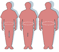 Illustration of obesity and waist circumference