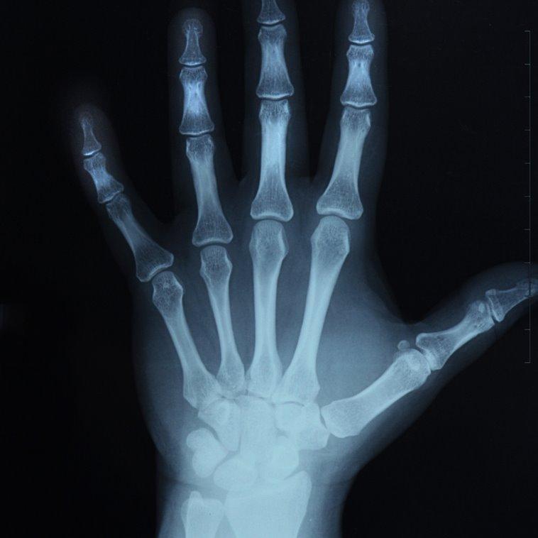 [bone.htm]